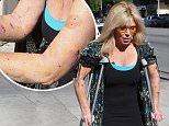Pamela Bach-Hasselhoff reveals injuries after being mauled by THREE dogs