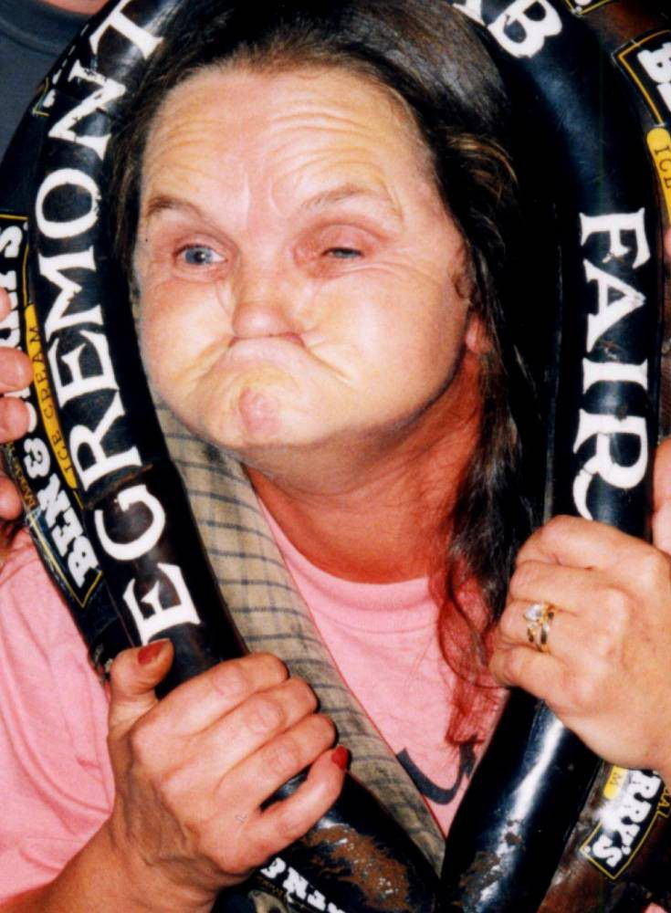 World champion gurner Anne Woods dies aged 67