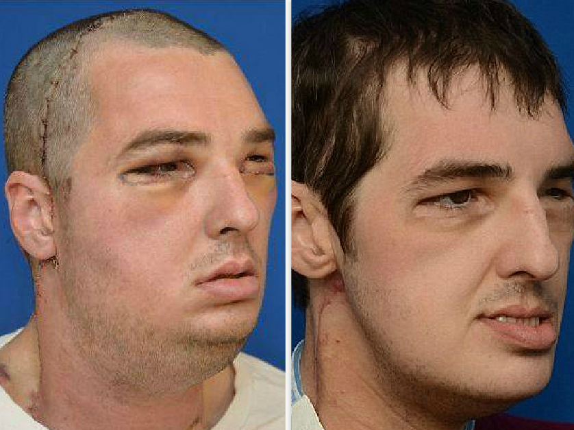 Woman saw her dead brother's face on another man's body following transplant