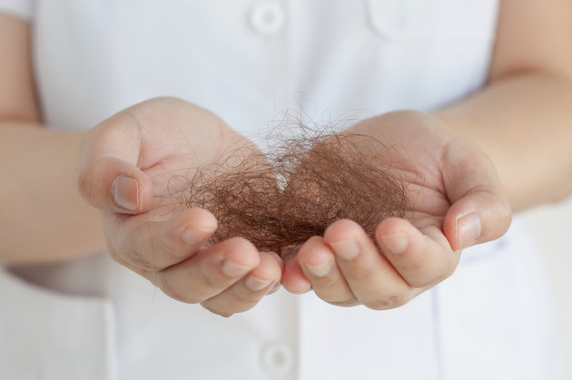 What Losing My Hair In My 20s Taught Me