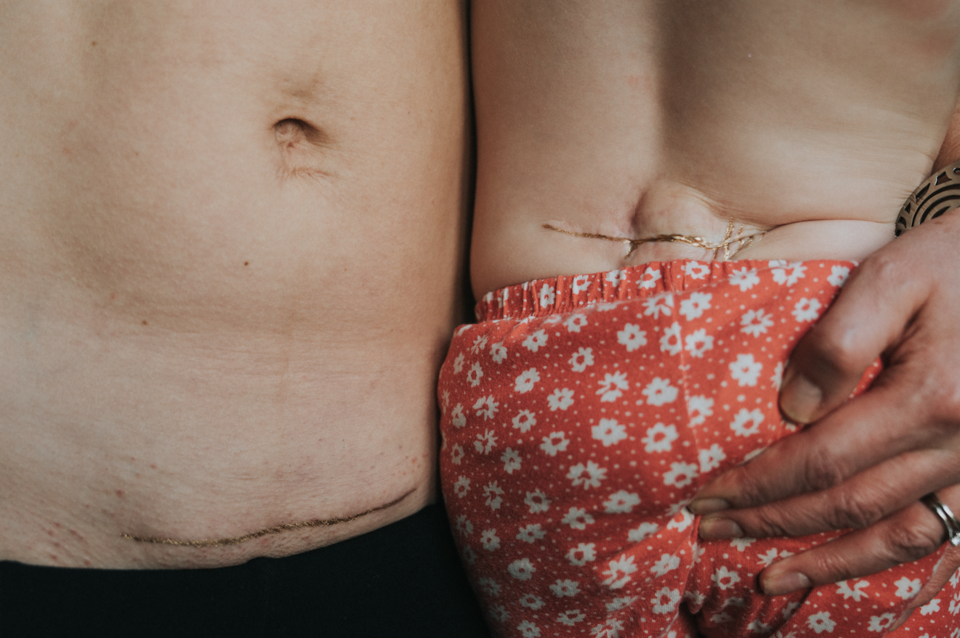 This Photo Helped A Girl With Spina Bifida See The Beauty Of Her Scar