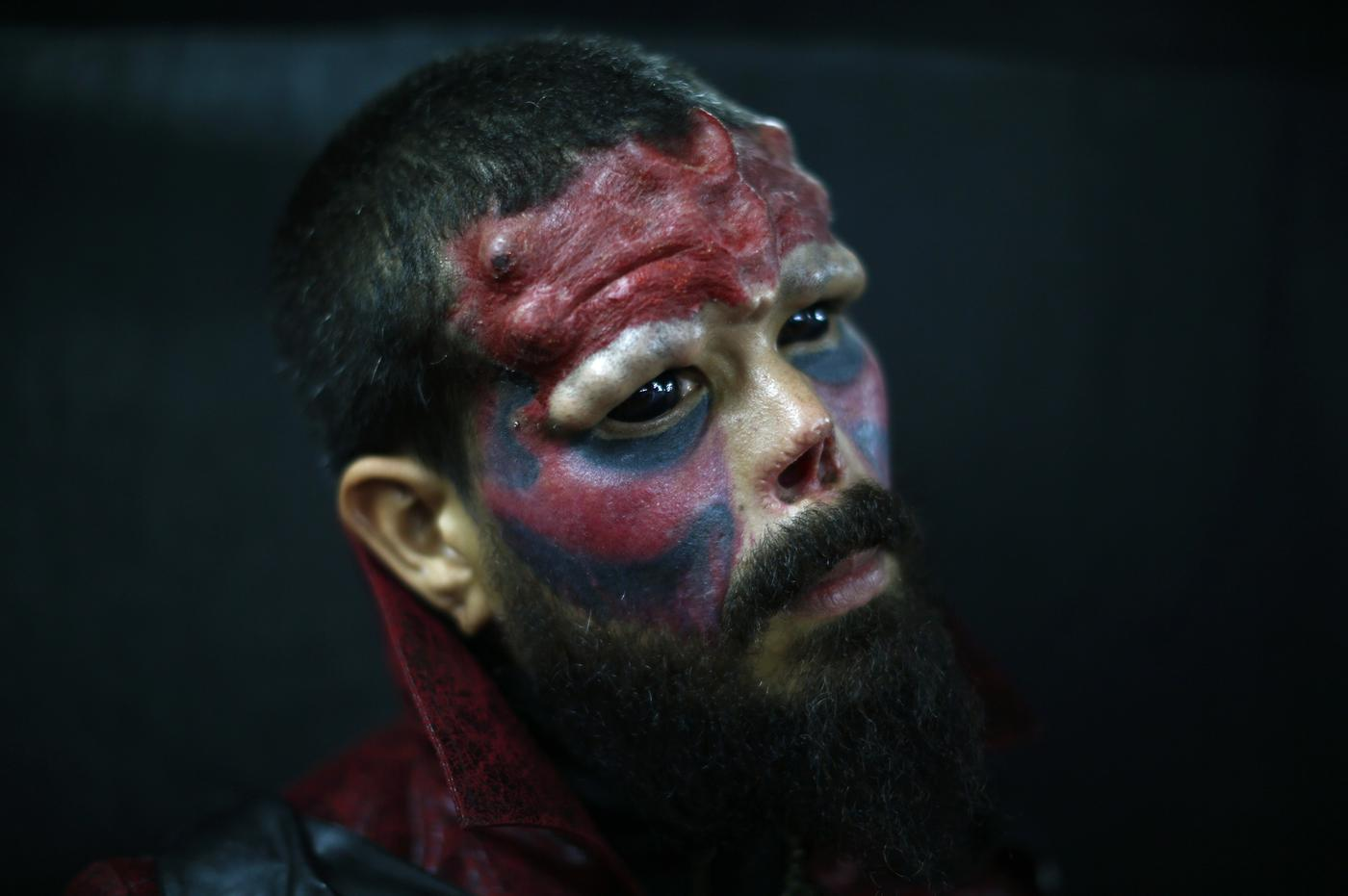 Man has nose cut off to look like comic book's Captain America super villain Red Skull