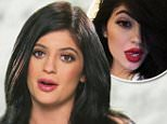 Kylie Jenner admits to lip fillers after Khloe Kardashian urges her to stop lies