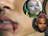 Chris Brown's fans react to Karrueche Tran's fake bloody lip on Instagram