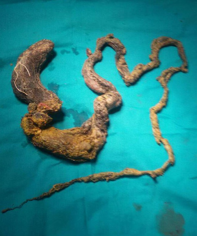 This five foot long hairball used to be in someone's stomach