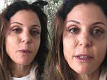 Bethenny Frankel 'getting tested for skin cancer'